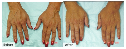 AVC Before After Hands