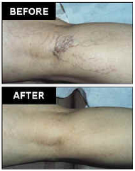 AVC Before After Spider Veins2