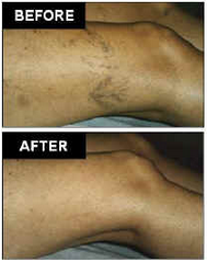 AVC Before After Spider Veins1