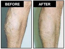 AVC Before After Varicose Veins2