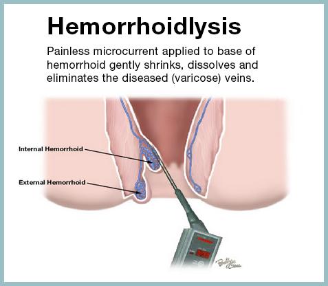 AVC Hemorrhoid treatments Hemorrhoidlysis